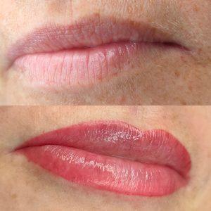 Pigmentatie lippen